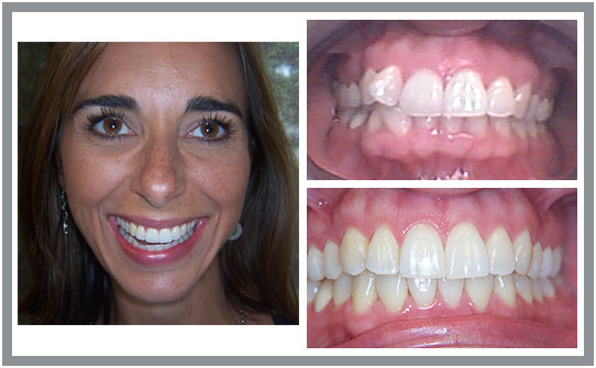 Dental Patient Before & After | East Cooper Dental | Family Dentists in Charleston SC